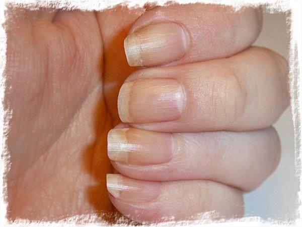 Nakna naglar efter 6 veckor