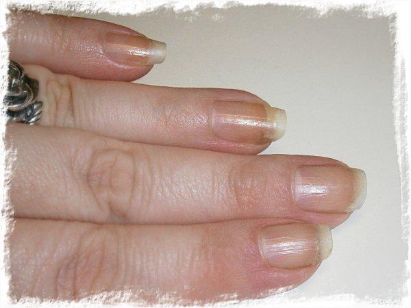 Nakna naglar efter 7 veckor