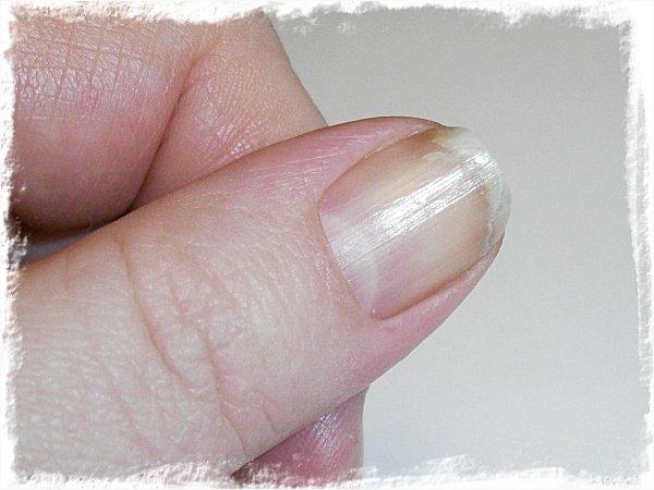 Naken tumnagel  efter 7 veckor