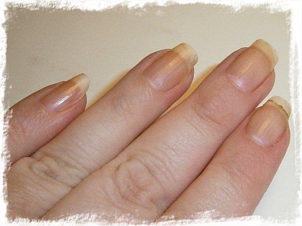 Nakna naglar 9 veckor