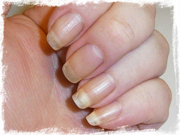Nakna naglar, nästan helt utan missfärgning
