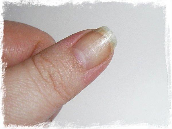 knöliga naglar