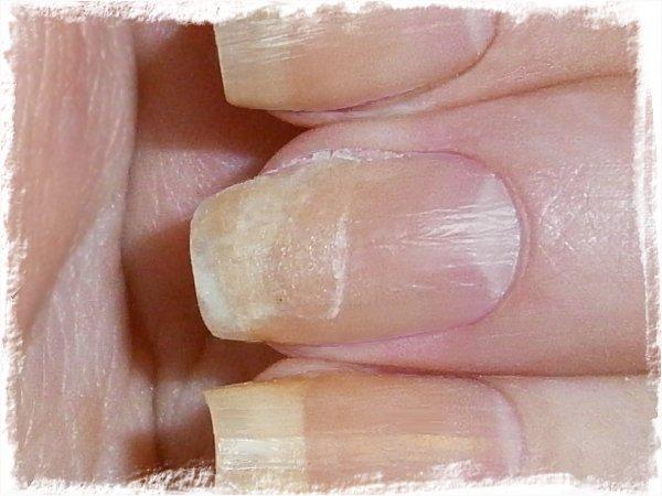 Lagad nagel